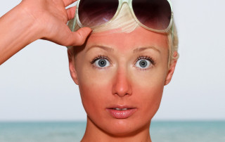 Woman raises her sunglasses revealing her sunburn